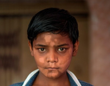 A boy with Leprosy