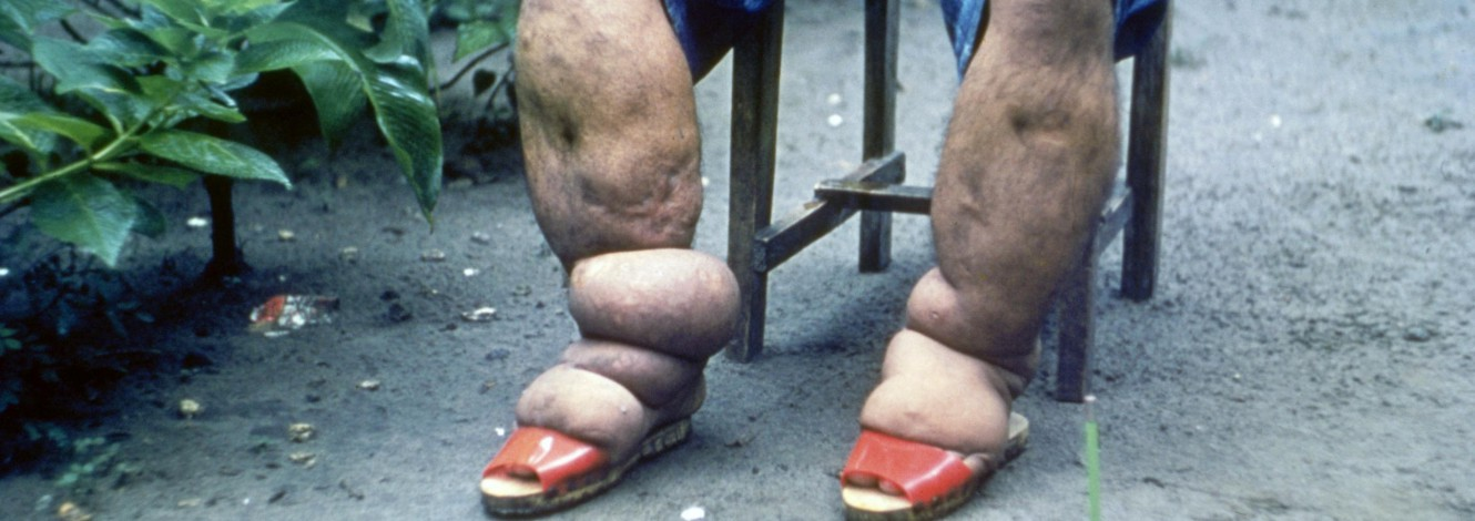 A person with Lymphatic filariasis