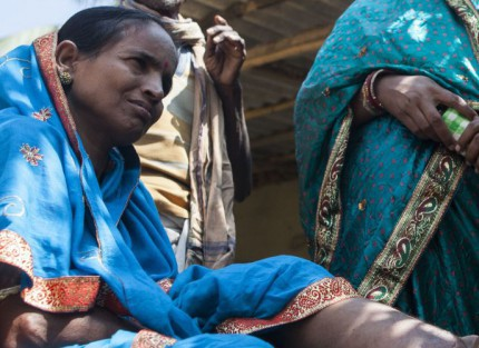 A woman with Lymphatic Filariasis